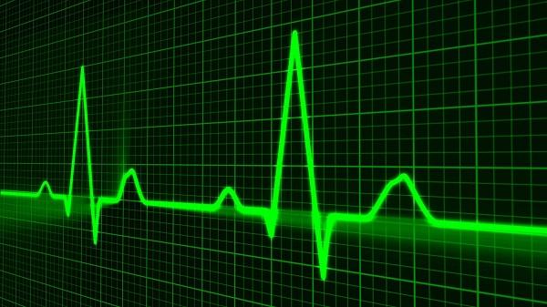 A heart cardiogram